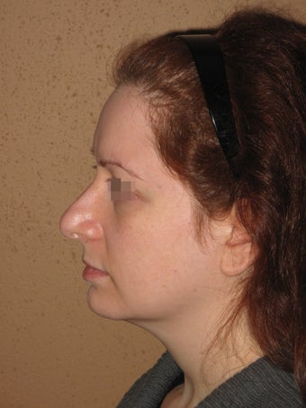 rhinoplasty nose job  before 270695