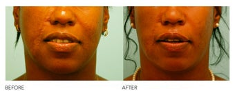 Fat Transfer/Fat Grafting/Facial Rejuvenation before 136375