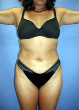 Liposuction Surgery after 123633