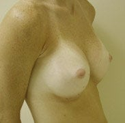 Breast Augmentation after 139578