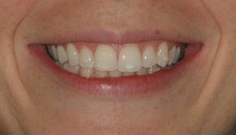 Smile Makeover with Invisalign after 94816