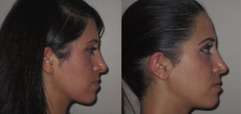 Facial Rejuvenation, non-surgical 450123