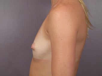 Breast Augmentation 467312