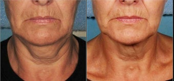 Ultherapy before 460629