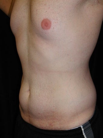 Male Tummy Tuck, Flank Liposuction, Male Breast Reduction 578191