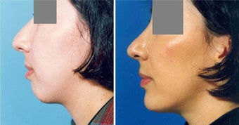 Chin Implant before 643005