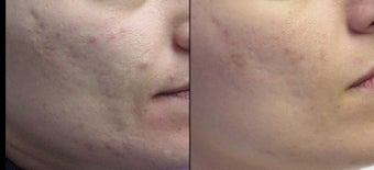 Aesthera Isolaze for acne before 109823