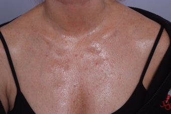 decollete laser resurfacing before 253111