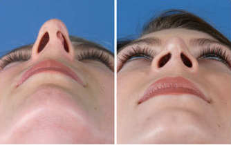 Rhinoplasty after 269011