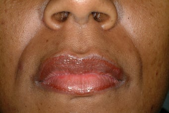 Juvederm before 86805