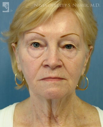 Facelift, Eyelid Surgery & Chin Implant before 501561