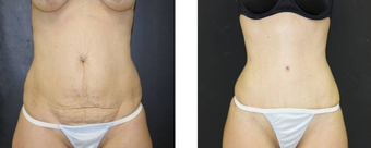 Tummy Tuck after 466954