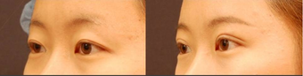 Double Eyelid Surgery Non-Incision before 451350