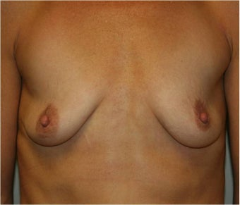 Breast Augmentation before 110453
