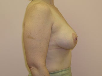 Breast Lift with Implants after 312862