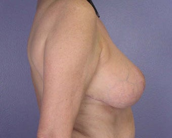 Breast Reduction after 285311