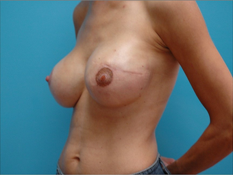 Breast Reconstruction after 310525