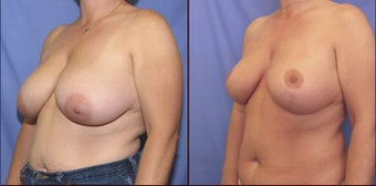 Breast Reduction after 98605
