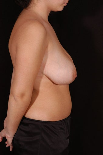 Breast Reduction and Lift before 129903