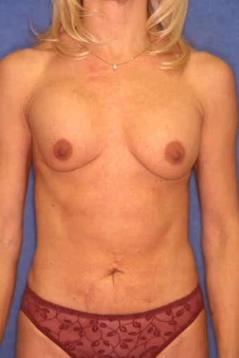 Tummy Tuck with Liposuction before 410395