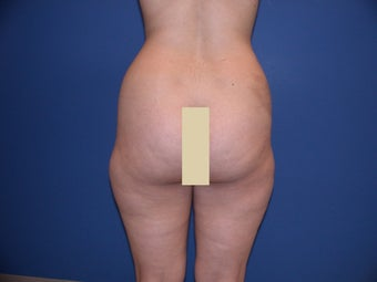 Liposculpture of Thighs and Hips before 57157