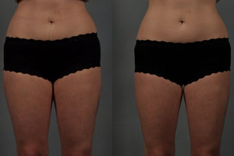 CoolSculpting of the Inner Thighs before 549795