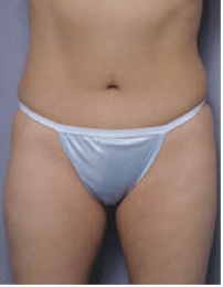 Abdominoplasty after 428196