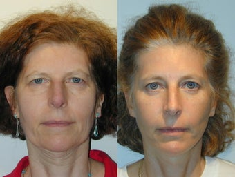 Full Facelift - Browlift, lower blepharoplasty, Lower Facelift before 137750