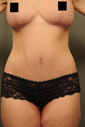 Abdominoplasty, abdominal and flank liposuction, beltlipectomy, bilateral mastopexy after 366885