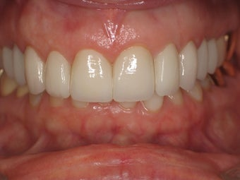 Gum Recontouring after 364705