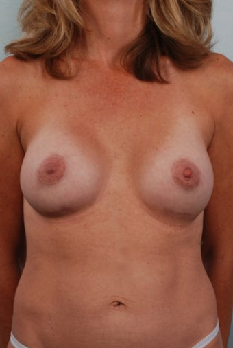 Breast Augmentation, Bilateral Areola Reduction, Correction of Right Inverted Nipple after 240387