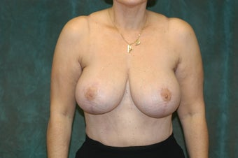 Women's Breast Augmentation: Redo  after 554000