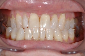 Lumineers Dental Veneers before 382135