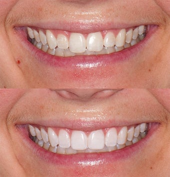 Invisalign with tissue corrections & whitening before 324496