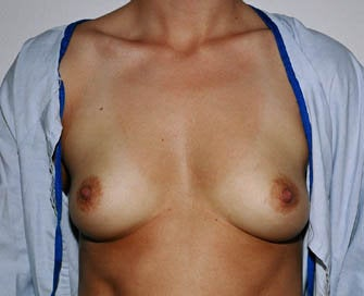 Augmentation Mammaplasty (Breast Implants) before 226499