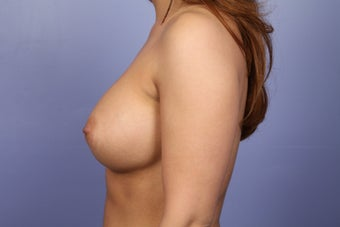 Breast Augmentation  after 338704