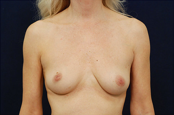 Breast Augmentation before 629087