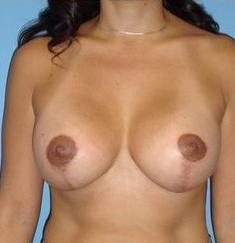 Breast Augmentation with full lift after 146445