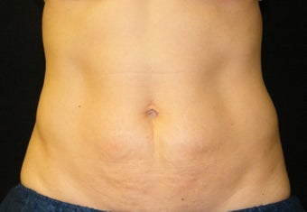 CoolSculpting after 621991