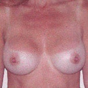 Breast Augmentation after 214430