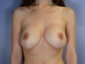 Breast lift/ Breast Augmentation after 290950