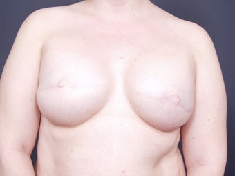 37 Year Old Female for Breast Reconstruction after 643165