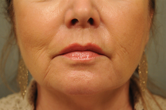 Upper lip shortening after 451906