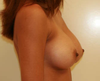 Augmentation Mammaplasty (Breast Implants) after 226511