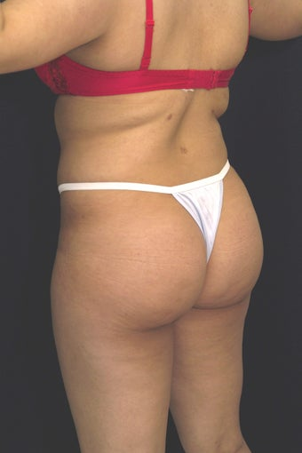 Fat injections to buttocks for Brazilian Butt Lift after 101299