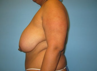 breast reduction before 284100