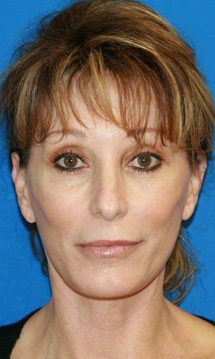 Facelift with Extended Necklift and Upper Blepharoplasty after 641627