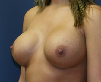 Breast Augmentation after 568967