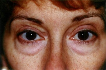 Blepharoplasty (lower eyelid surgery) before 278476