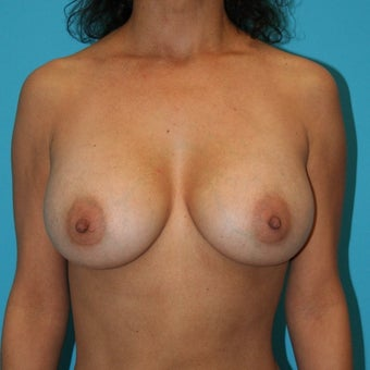 Breast Augmentation revision with silicone implants after 53599